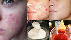 hqdefault - Cure Acne Just 1 Day