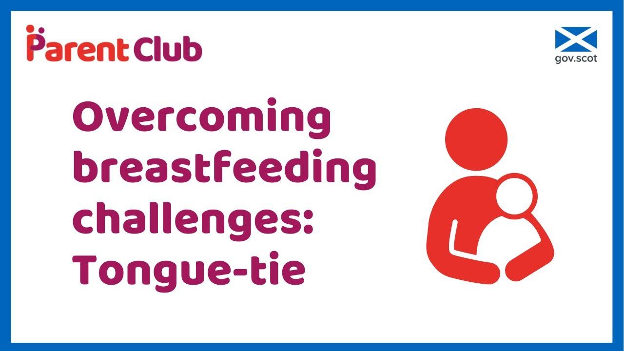 Overcoming breastfeeding challenges: tongue-tie