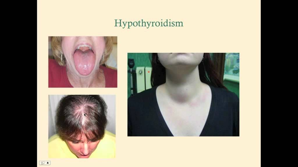 hypothyroidism crash medical review series youtube
