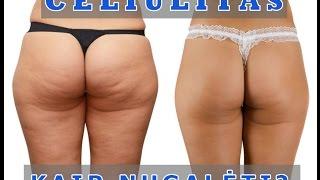 Ar celiulitas dingsta numetus svorį, Celiulitas ir mityba