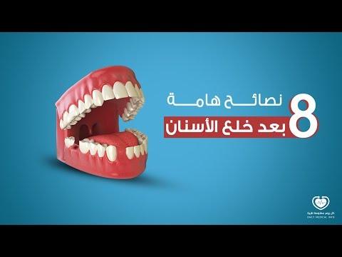 نصائح هامة بعد خلع الأسنان