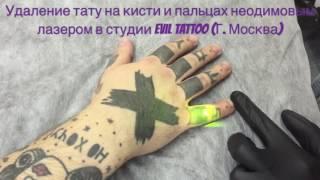 Удаление татуировки на кисти  неодимовым лазером #удалениетату #удалениетатуаж #лазерноеудалениетату