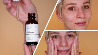 the Ordinary Mandelic Acid 10% Review + Application With Before and After