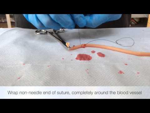 Ligation Of Blood Vessel ( Stick Tie Technique)