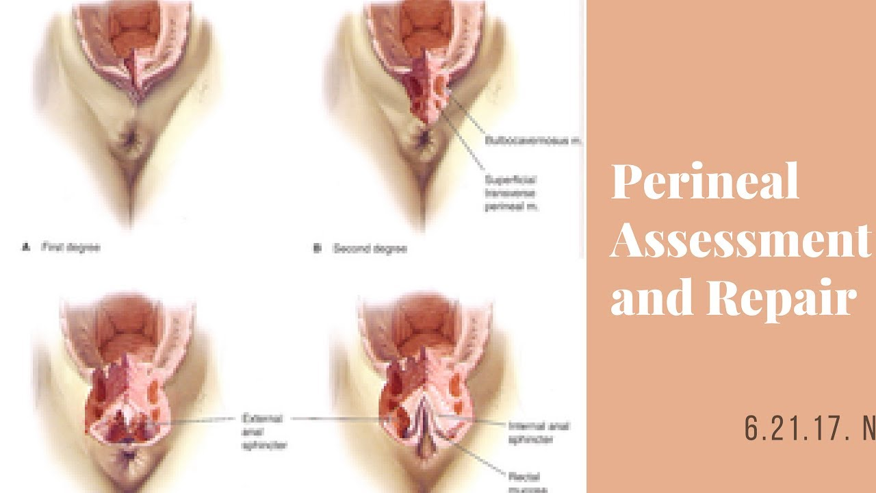 Managing complications of perineal lacerations