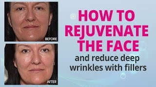 How To Rejuvenate The Face With Fillers and Reduce Deep Wrinkles | Edelstein Cosmetic Thumbnail
