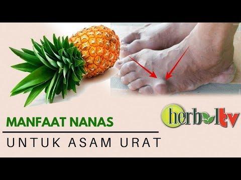 Sakit Asam Urat Berkurang !! Setelah Rutin Konsumsi Jus Nanas | Pineapple for Gout Mp3
