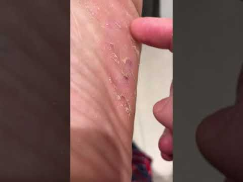 Athletes foot! Skin peeling! SATISFYING SCRATCH