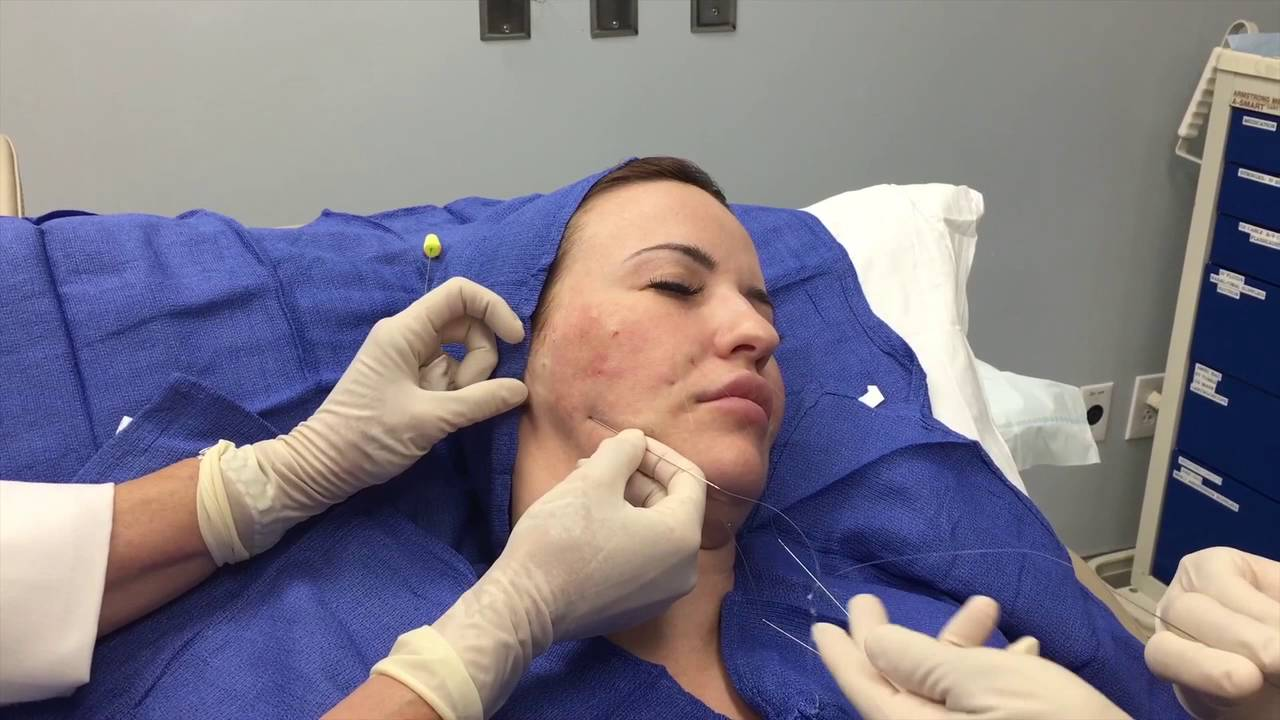 Silhouette Instalift Procedure With Dr Butterwick Youtube