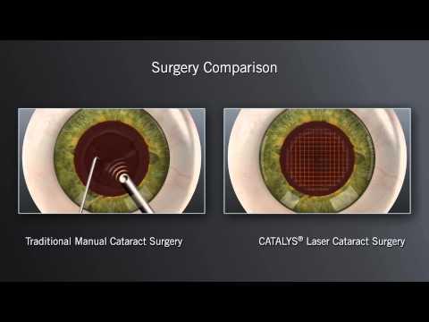 CATALYS Laser Cataract Surgery - North Georgia Eye Clinic