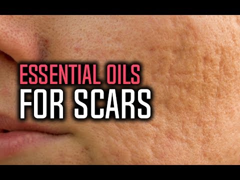 best-essential-oils-for-scars