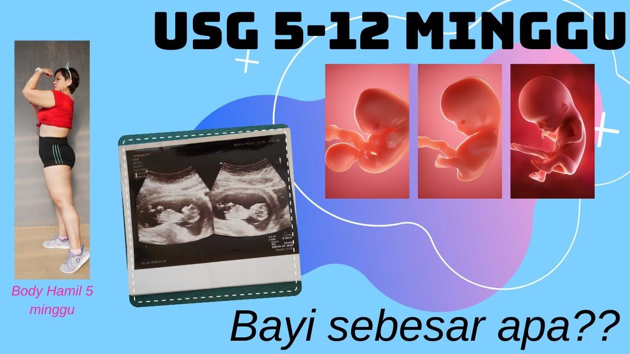 Perkembangan Janin Usia 5 12 Minggu Sudah Sebesar Apa Usg 5 12 W Pregnant And Body Condition Youtube
