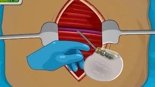 Operate Now: Pacemaker Surgery - walkthroug