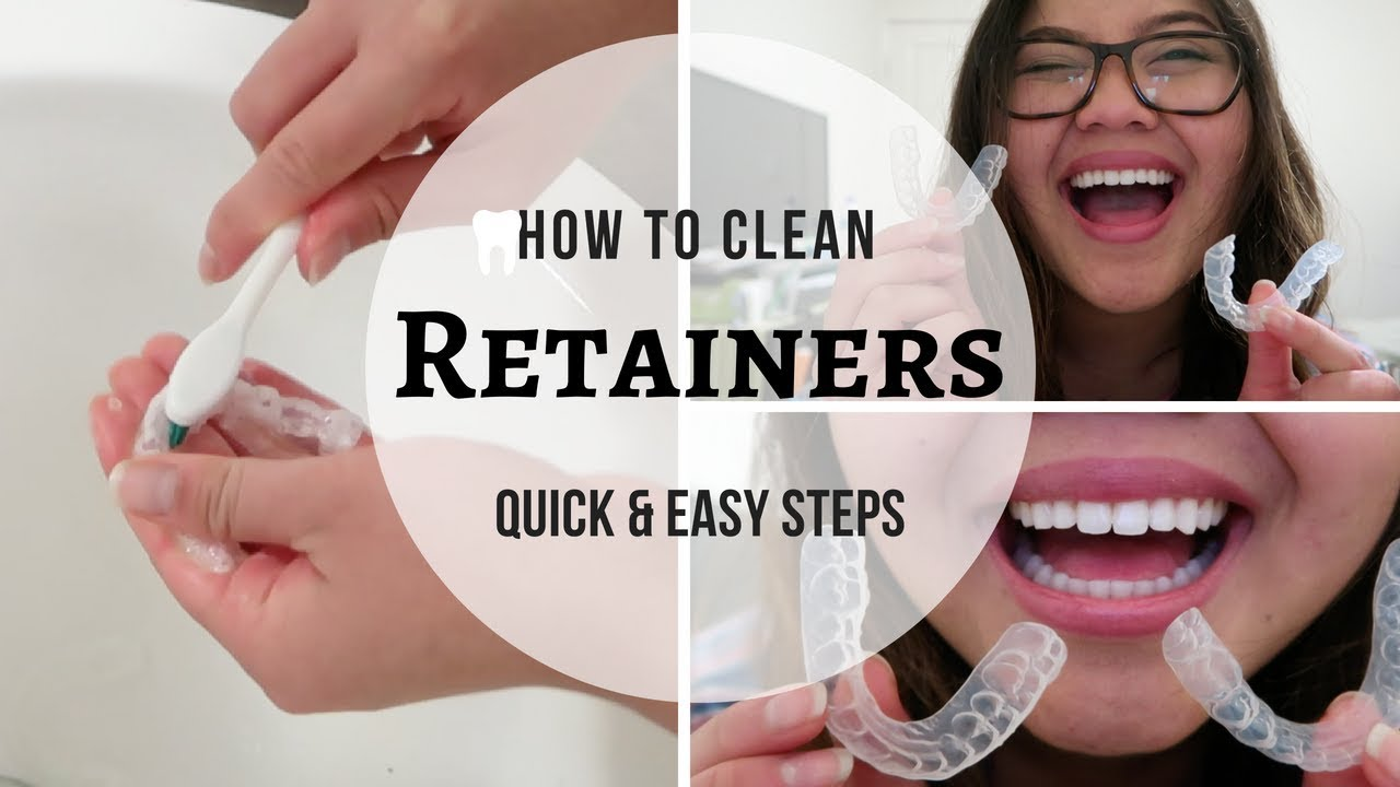 Wearing a Retainer After Braces: Types of Teeth Retainer