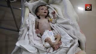 Gıdasızlıktan ölen Suriyeli bebeğin son anları