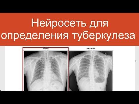 Автоматическое определение туберкулеза на флюорографии   Проекты по нейросетям