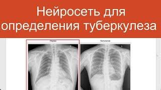 Автоматическое определение туберкулеза на флюорографии | Проекты по нейросетям