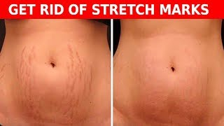 Make Stretch Marks Disappear With These Easy Steps