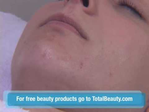How to Extract a Blackhead from Your Skin Properly