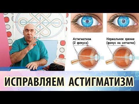 Что такое астигматизм и можно ли избавиться от него упражнениями для глаз