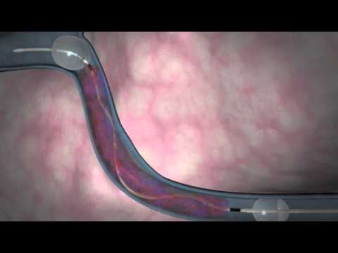 Deep Vein Thrombosis Treatment With Trellis Procedure  - NYC Surgical Associates