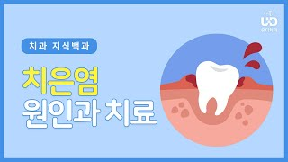 양치 할 때 피가? 치은염의 원인과 치료방법 | #유디…