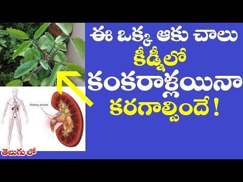 ఈ ఒక్క ఆకు చాలు కిడ్నీలో రాళ్లు కరగాల్సిందే ! | #Bryophyllum pinnatum health benefits in telugu