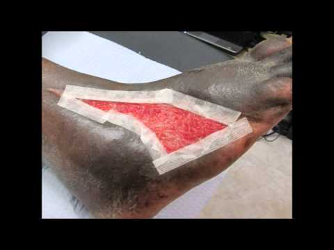 advanced-wound-care-&-limb-salvage
