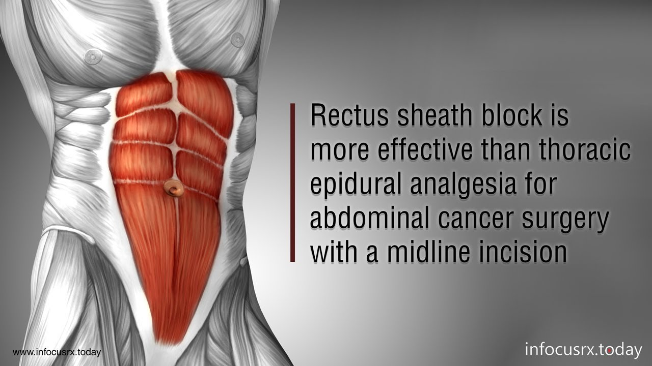 Rectus sheath block effective than thoracic epidural analgesia for  abdominal with midline incision