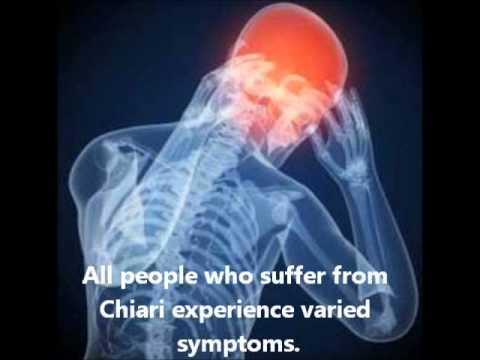 Chiari Malformation Awareness - YouTube