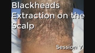 Blackheads Extraction on the Neck / Scalp - Session V