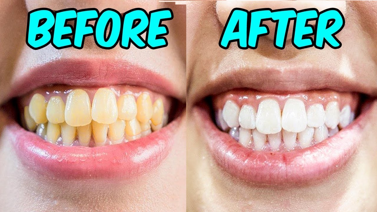 How To Whiten Your Teeth With Hydrogen Peroxide Baking Soda