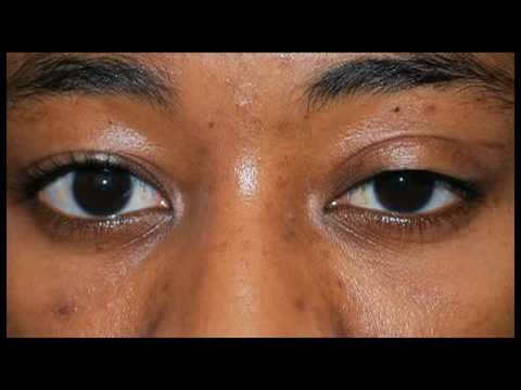 My Experience Having Revisional Ptosis Surgery - YouTube - ptosis surgery