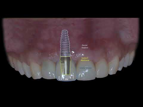 what-does-a-dental-implant-look-like?-|-implant-specialist-team-milton-oakville-mississauga-toronto