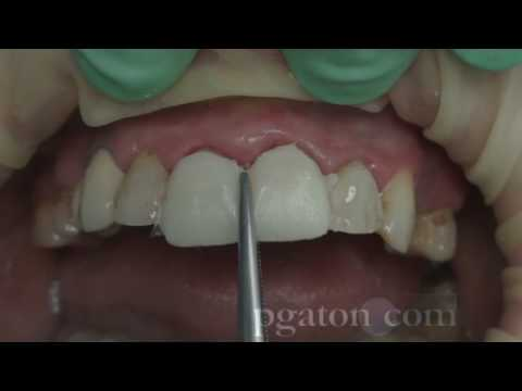 relyx ultimate instructions for veneers
