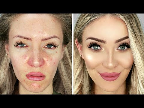 THE SICK MAKEOVER - GROSS TO GLAM