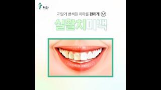 까맣게 변색된 치아 고…
