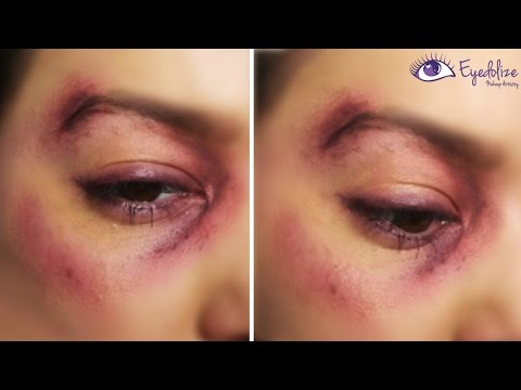 I Got Punched!! Bruised Black Eye Makeup Tutorial by EyedolizeMakeup
