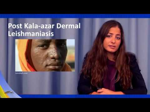 Treatment and Prevention - Leishmaniasis