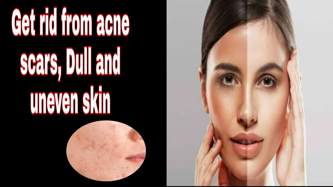 #ReadytoGlow DIY: Get rid from acne scars, Dull and uneven