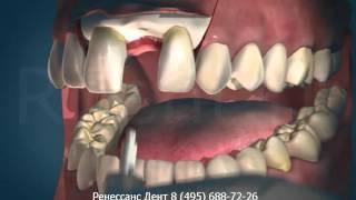 Косметическая стоматология - Имплантанты(, 2012-10-13T16:55:04.000Z)