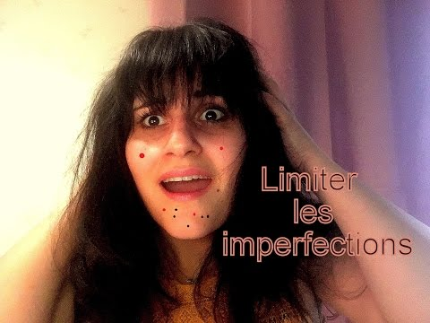 Comment limiter les imperfections ???
