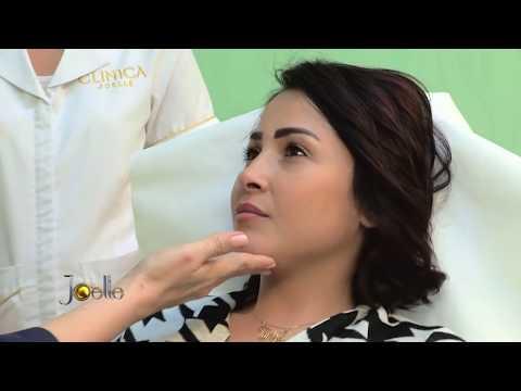 Clinica Joelle in Joelle Show episode 63