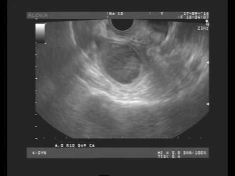 фиброма яичника фото