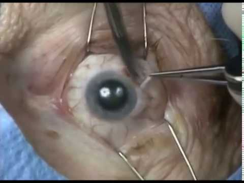 Enucleation with placement of implant