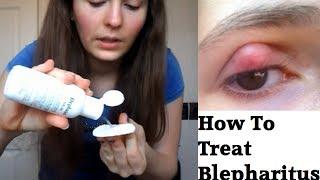 How to treat Blepharitis
