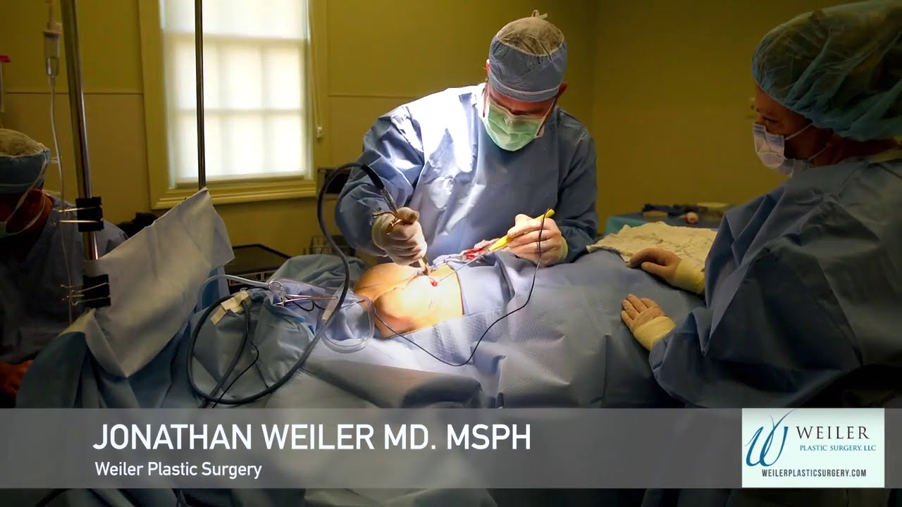 Dr Weiler Revision Breast Augmentation - Youtube-9461