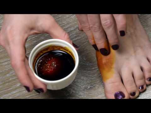 Как снять воспаление с косточки на большом пальце ноги