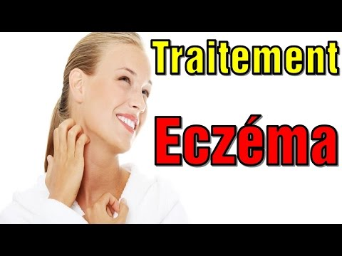 Traitement Eczema ★★★ 10 Remèdes Naturels Contre L'eczéma