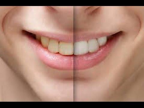 Избељивање кућних зуба